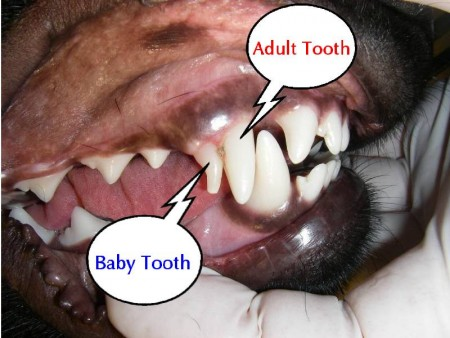 teeth label